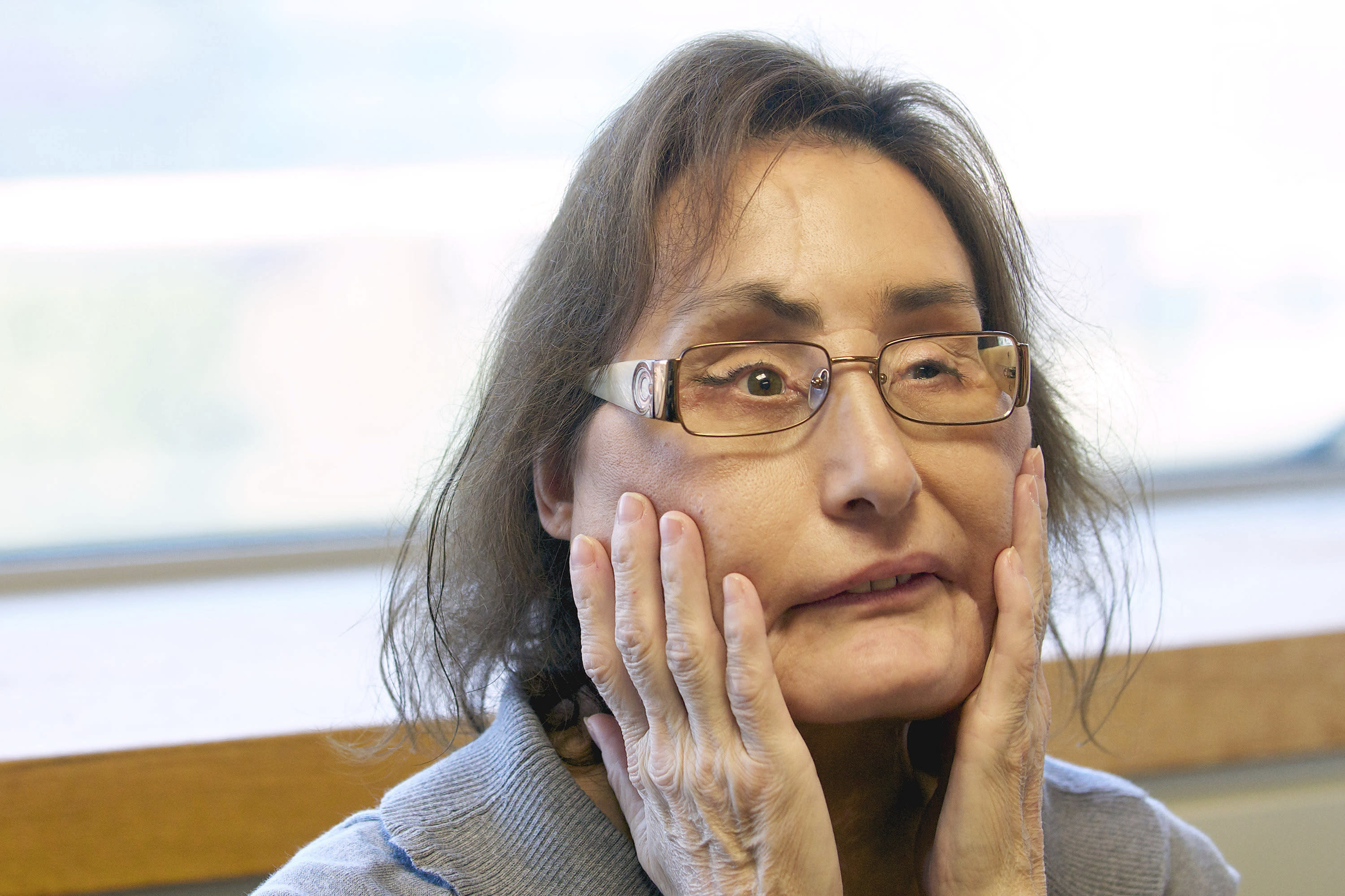 Connie Culp, first USA recipient of partial face transplant, dead at 57