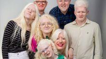 Albinos, blanco de prejuicios
