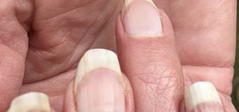 Are 'COVID nails' a sign you had the virus?