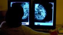 Lonely women 'more likely to die from returning breast cancer'