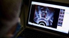 Gli diagnosticano disturbi alimentari, Tac rivela 4 tumori al cervello