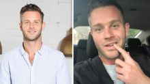 MAFS' Jake Edwards opens up about 'tiny teeth' transformation