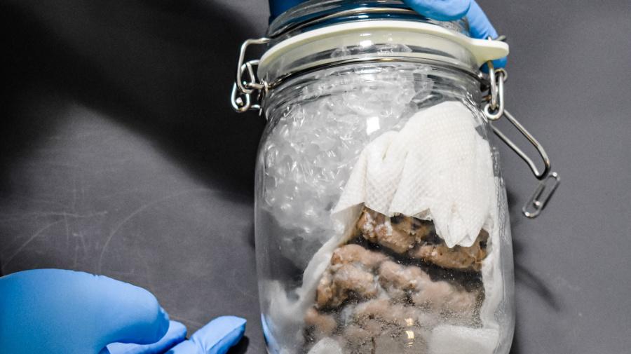 Human brain found in U.S.-bound Canada Post package