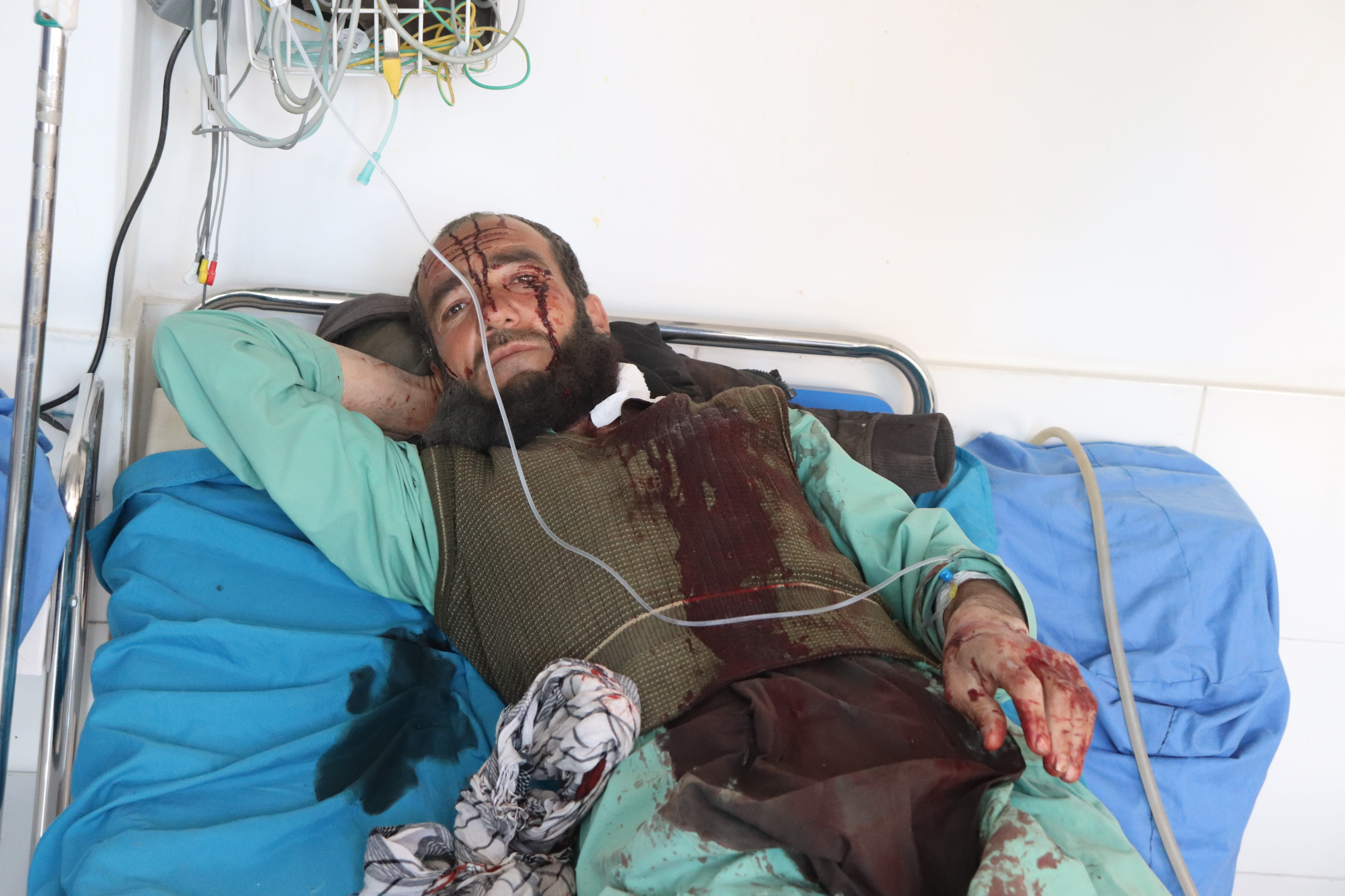 An Afghan receives a treatment at a hospital after a suicide car bombing in Ghor province western of Kabul, Afghanistan, Sunday, Oct. 18. 2020. A suicide car bombing on Sunday killed at least 1a dozen people and wounded more than 100 others in Afghanistan is western Ghor province officials said. (AP Photo)