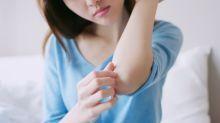 濕疹與個人體質、天氣轉變關係密切 立即搜尋【濕疹】了解一下