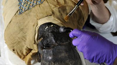 Mummy Gets Makeover at Massachusetts Hospital