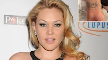 Shanna Moakler Gets Her Tattoo of Travis Barker's Name Removed in New Video: 'It's Worth It'