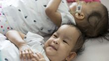 Conjoined twins 'can't be without each other' after separation