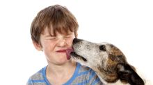 What The Health?! Can you really die after being licked by a dog?