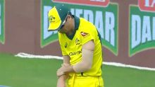 Aussie star suffers gruesome injury ahead of ODI World Cup