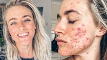 An acne positivity influencer shares makeup-free photos to inspire others to love their skin