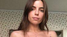 """Mutig: """"Halloween II""""-Star Angela Trimbur zeigt Brustkrebs-OP-Narbe"""
