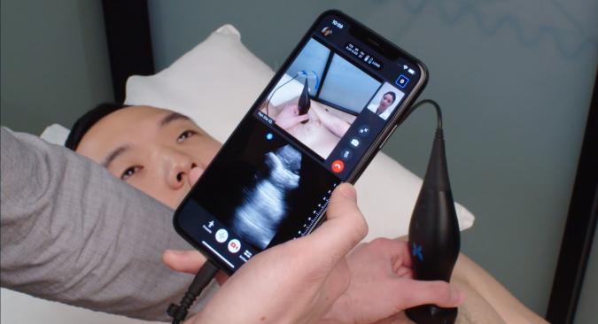 Butterfly Network ultrasound teleguidance