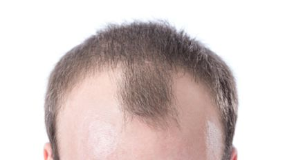 Cure for baldness could be possible after researchers find new clue in cells