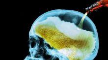 Por qué beber en atracón está atrofiando tu cerebro