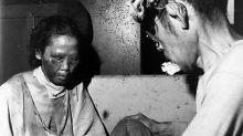 Hiroshima y Nagasaki | La dramática vida de los hibakusha, los sobrevivientes de las bombas atómicas que luego sufrieron miedo, culpa y discriminación
