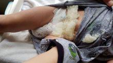 Pai publica alerta após fralda do filho explodir com 'gelatina cristalizada'