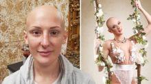 Mulheres com alopecia fazem ensaio sensual e mostram que carecas são lindas