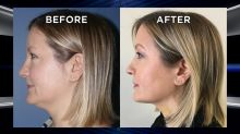The No Downtime Fix for Your Neckline