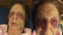 Grandmother lays in pool of blood playing dead after being attacked night before her husband's funeral