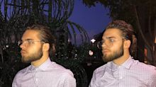 These twins are so identical people think they are Photoshopped