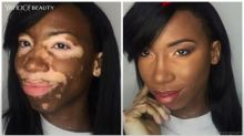 Watch Amazing Makeup Transformation of Model With Vitiligo