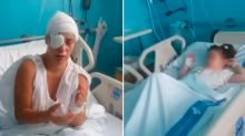 Obsessed stalker 'attacks mum and daughter with acid'