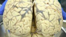 Herz-Kreislauf-Risikofaktoren beeinflussen auch das Gehirn