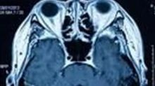 Nanalysis Wins European Competitive Bid with NextGen MRI System for Personalized Medicine Research