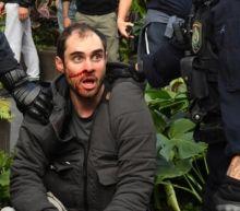 Australia Covid: Arrests at anti-lockdown protests