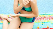 The Best Sunburn Remedies To Get You Through The End Of Summer