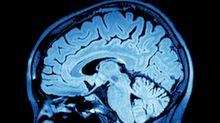 Scientists seek drug to 'rewire' adult brain after stroke