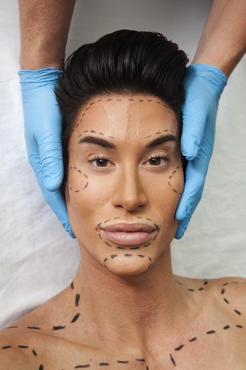 Human Ken Doll Explains Why He Got His Forehead Veins Removed