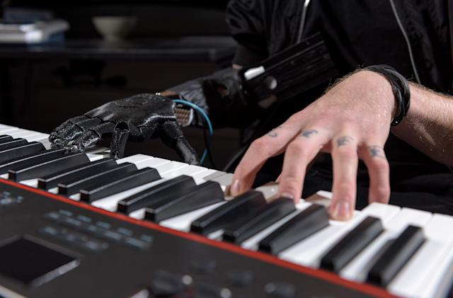 Researchers create prosthetic hand that offers more lifelike dexterity
