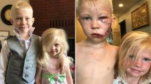 Brave boy, 6, disfigured after saving little sister from dog attack