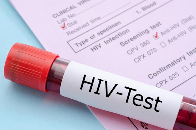 HIV vaccine delivers promising results in human tests
