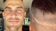 Actor reveals he's had 5 hair transplant surgeries, shows off scar