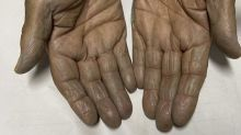 The unusual reason this woman's hands turned green