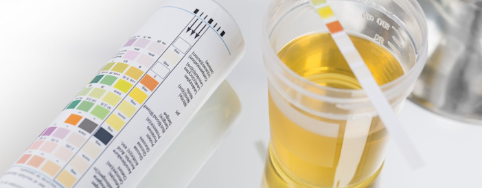5 Key Things The Colour Of Your Urine Tells You About Your Health