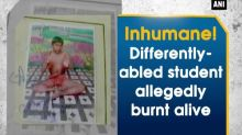 Inhumane! Differently-abled student allegedly burnt alive