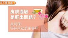 【健康專題】皮膚過敏是哪裡出問題?中醫師推介喝這茶!