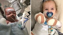 'Hanging by a thread': Mum witnesses baby's leg falling off while battling sepsis