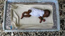 ONU alerta que pandemia de coronavírus agrava desnutrição infantil