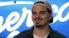 'American Idol' fan favorite flaunts surprising makeover: 'I got new teeth, guys!'