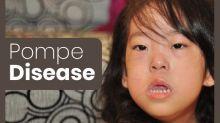 Pompe Disease: Types, Causes, Inheritance, Diagnosis & Treatment