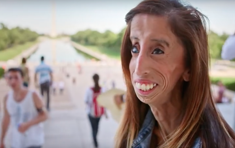 She Was Once Called the World's Ugliest Woman—Now She's ...