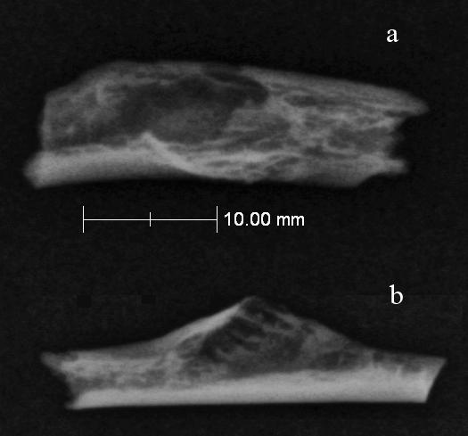 Two x-ray views of a tumor-ridden Neanderthal bone found in Croatia.