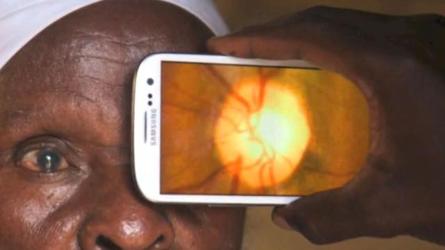Eye exam? There's an app for that