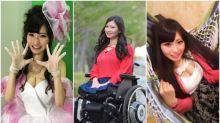 【有片】殘障無阻美麗人生 網民讚19歲「μ(みゅう)」超可愛