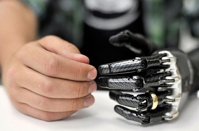 7 real-life cyborg implants